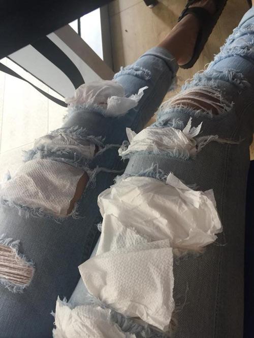 Chiếc quần của cô gái sau khi được bạn trai vá.