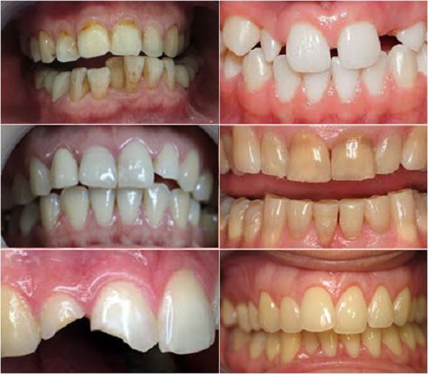 Mặt dán sứ Veneer là một trong những phương pháp thẩm mỹ răng sứ có ưu điểmgiữ lại tối đa răng thật.