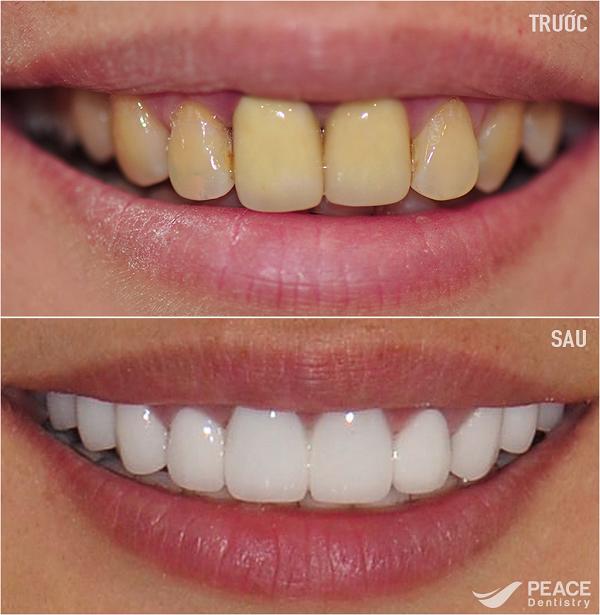 Phom răng tinh tế, màu sắc trắng sáng và có độ trong tự nhiên, hài hòa với tổng thể khuôn miệng, mặt, làn da.