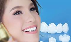 Thẩm mỹ răng sứ và tư vấn từ chuyên gia