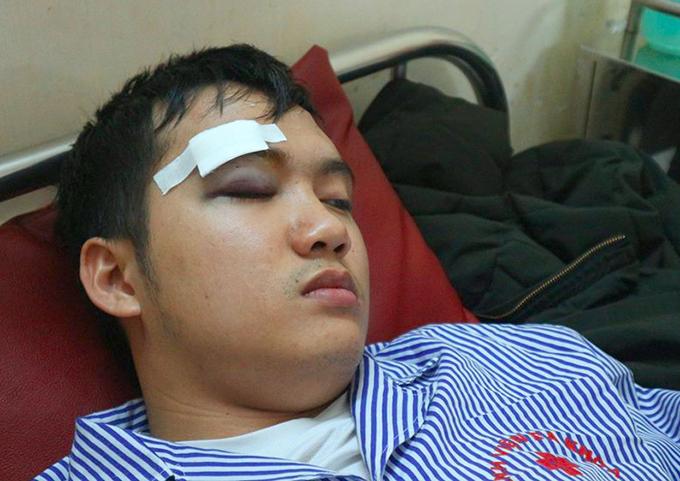 Sinh viên Giáp bị thương ở mắt. Ảnh: H.L