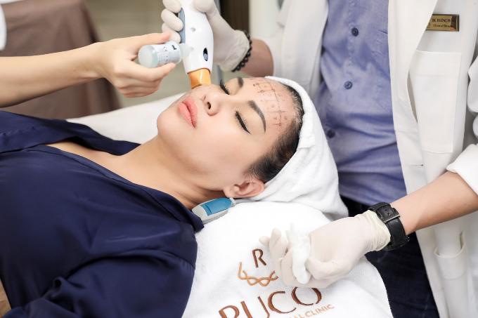 Ca sĩ Minh Tuyết đang điều trị công nghệ Ultra Thermage chính hãng tại Ruco.