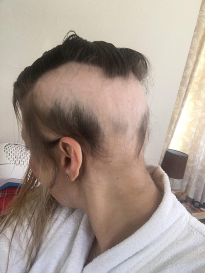 Gần 3 năm sau khi kết hôn lần hai, bà mẹ ba con vẫnkhông biết đến bao giờ tóc mới mọc trở lại. Ảnh: The Sun