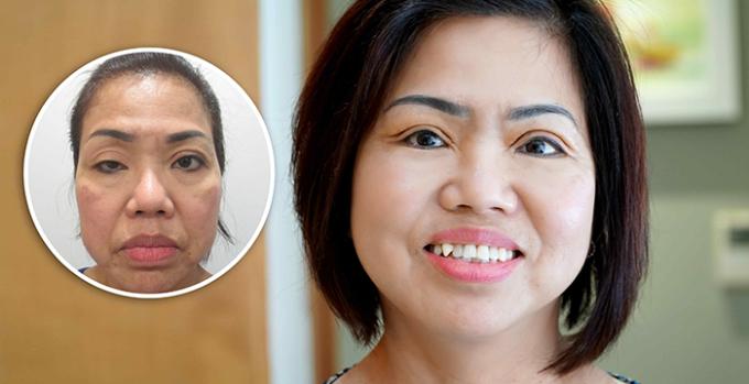 Cô Trần Thị Mai Oanh -Việt kiều Mỹ về JW để cải thiện đôi mắt sụp míbẩm sinh.