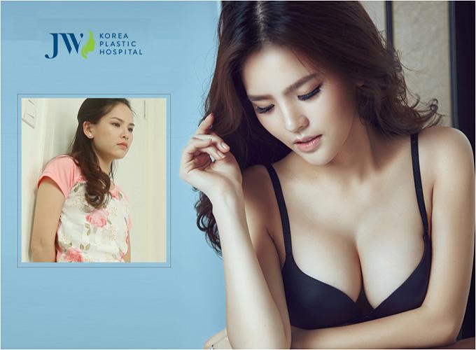 Diễn viên điện ảnh Trang Phi quyến rũ hơn nhờ nâng ngực nội soi, Bệnh viện thẩm mỹJW Hàn Quốc.