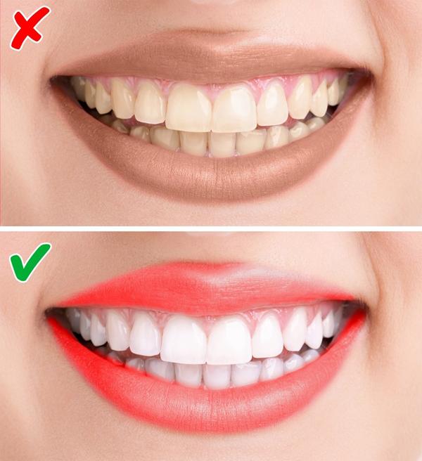 7. Chọn theo màu răng Nếu có hàm răng trắng, bạn có thể đánh đa phần tất cả các màu son hợp với sắc tố da.Nếu có hàm răng vàng, nên chọn màu hoa hồng, màu cam hoặc đỏ nhạt. Tránh màu đỏ tươi, tím hoặc nâu.