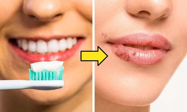 Dùng kem đánh răng để tẩy da chết cho môi
