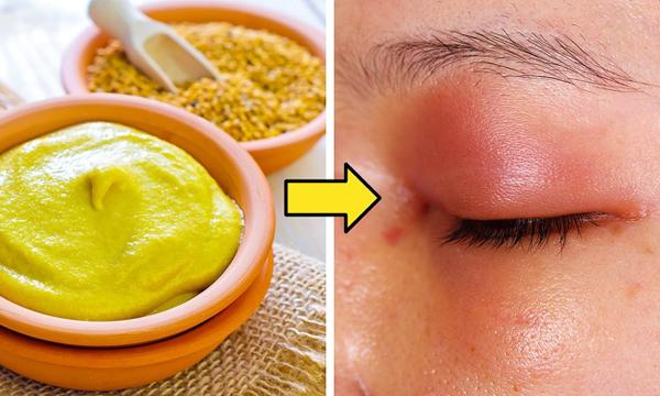 Dùng mù tạt kích thích mọc tóc Hỗn hợp dầu, trứng, đường và mù tạt được dùng để kích thích mọc tóc. Tuy nhiên, chúng có thể gây ra tác dụng phụ không mong muốn nếu