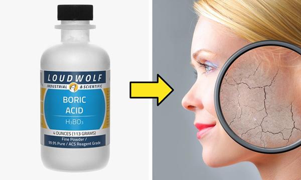 Dùng axit boric thay thế toner Axit boric được sử dụng trong các sản phẩm làm sạch, gel rửa, chất tẩy. Tuy nhiên, chất này không thể sử dụng đơn lẻ vì nó có thể gây bỏng, kích ứng da.