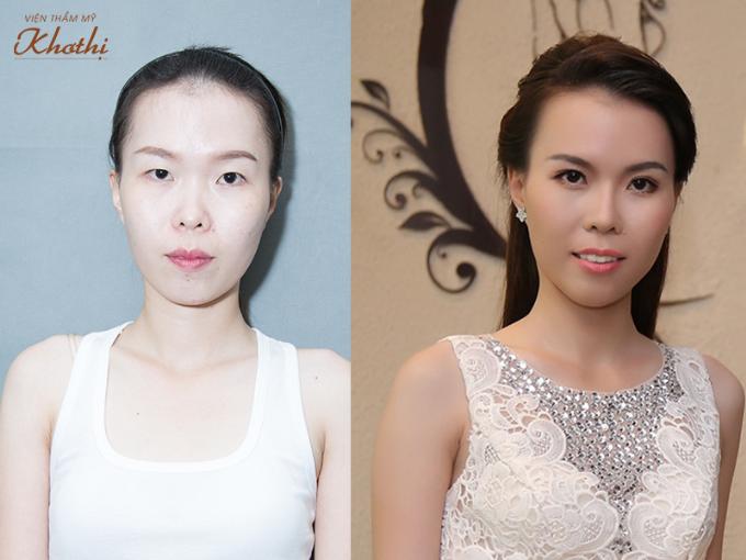 Hoa hậu Thu Hoài: Thẩm mỹ giúp nhiều phụ nữ thành công hơn - 1