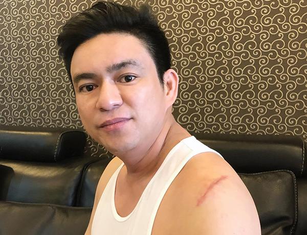 Bác sĩ Thái và vết thương trên vai được chia sẻ trên trang cá nhân.