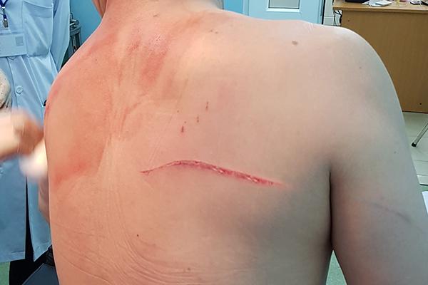Vết thương bị nhóm giang hồ gây ra ở lưng.