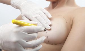Bệnh viện thẩm mỹ đáp trả đơn kiện làm hỏng ngực của cô gái Hà Nội