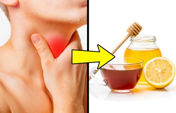 Điều trị viêm họng Chanh chứa nhiều vitamin C, một chất chống oxy hóa tự nhiên giúp tăng cường hệ thống miễn dịch và có đặc tính kháng khuẩn. Pha mật ong với nước ấm và vài giọt nước cốt chanh là liệu pháp trị viêm họng hữu hiệu. Mật ong phủ cổ họng trong khi chanh làm giảm chất nhờn.
