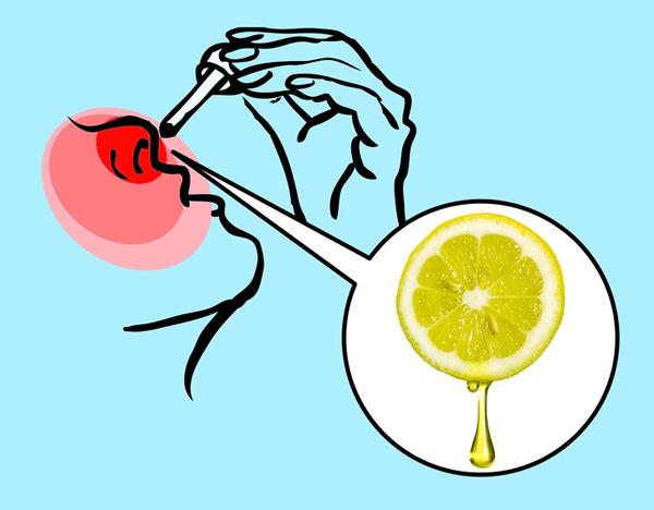 Làm ngưng chảy máu mũi Bên trong mũi có rất nhiều mao mạch nhỏ, có thể dễ dàng bị vỡ gây chảy máu mũi. Khi bị chảy máu cam, không nên ngửa đầu ra sau mà nên giữ thẳng đầu và bóp nhẹ mũi. Nhỏ 1 - 2 giọt nước cốt chanh vào mỗi bên lỗ mũi, máu sẽ ngừng chảy gần như ngay lập tức.