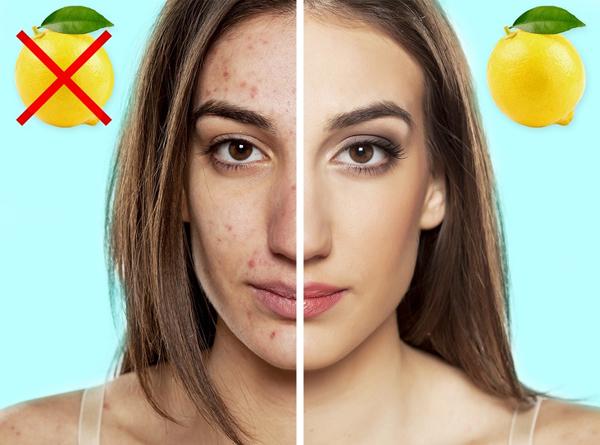 Làm giảm sẹo mụn Chanh rất giàu vitamin C và axit citric, giúp điều trị mụn cám và sẹo mụn hiệu quả. Vitamin C tăng cường sản xuất collagen và giữ cho làn da mịn màng và khuyến khích sự hình thành các tế bào da mới. Nhờ đặc tính tẩy trắng tự nhiên mà nước chanh có thể làm sáng các vết thâm cho mụn để lại. Trộn nước cốt chanh với dầu dừa nguyên chất, thoa lên vùng da có sẹo mụn sẽ giúp làm mờ sẹo.