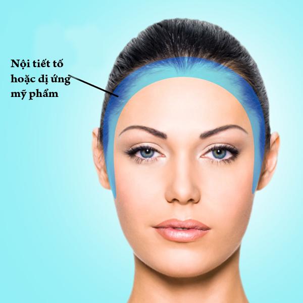 Mụn ở vùng hai bên cạnh khuôn mặt có một phần nguyên nhân do rối loạn nội tiết tố. Phần nguyên nhân khác là do dị ứng mỹ phẩm hay các sản phẩm chăm sóc tóc.