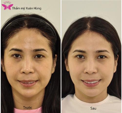 Diễn viên Lý Hương trước và sau khi áp dụng công nghệ Thermage tại Thẩm mỹ Xuân Hùng.