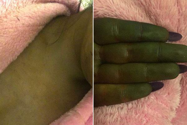 Da người và tay của Danni chuyển màu xanhsau khi bôi thuốc nhuộm. Ảnh:kennedynewsandmedia.co.uk.