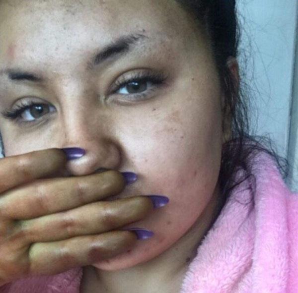 Sau khi dùng bông kỳ và xát, màu da cô mới bớt xanh. Ảnh:kennedynewsandmedia.co.uk.