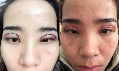 Một ca cắt mí hỏng làm biến đổi khuôn mặt.