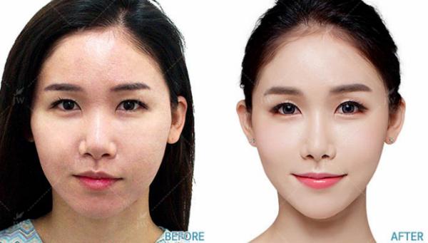 Cấy mỡ mặt baby face trẻ hóa toàn diện gương mặt, giúp da mịn màng