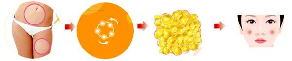 Mỡ từ chính cơ thể qua hệ thống Puregraft chiết tách chọn lọc giữ lại tế bào gốc mỡ tự thân ưu việt và khỏe mạnh.