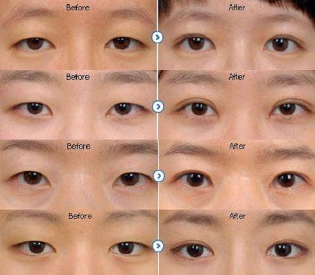 Ở nam giới, nếp gấp mí thường hẹp hơn so với nữ, cung mí thấp, tạo hình dáng mắt cũng thoải hơn.