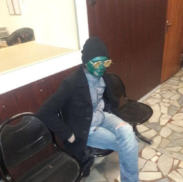 Diện mạo quá dễ nhận ra của tên trộm khi bị cảnh sát bắt. Ảnh: O. C.