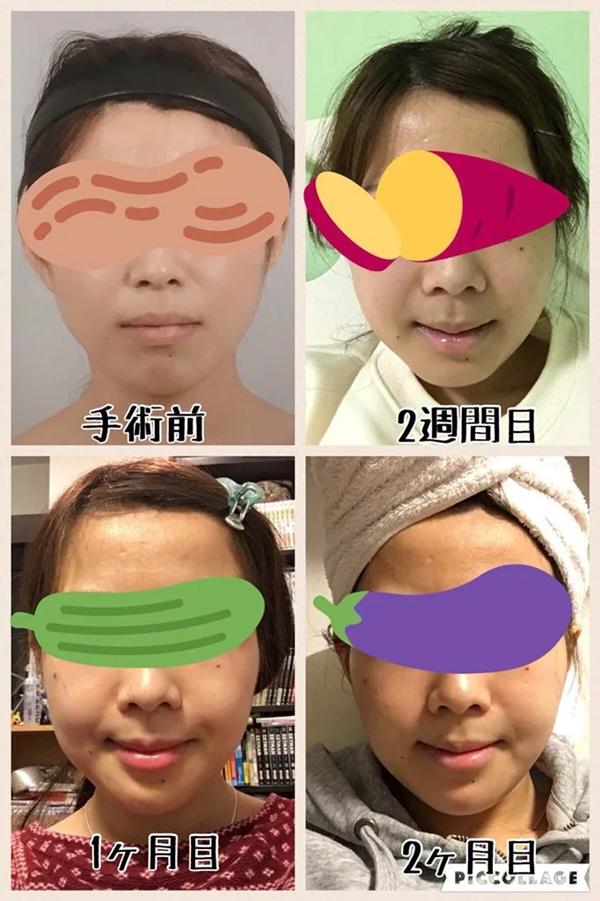 Meji chia sẻ hình ảnh sự thay đổi của khuôn mặt sau 1 tuần, 2 tuần, 1 tháng và 2 tháng tính từ lúc phẫu thuật thẩm mỹ.