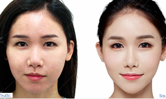 Ưu đãi công nghệ cấy mỡ Baby Face cho các tín đồ làm đẹp
