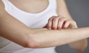 Mẹo chăm sóc da khô giúp giảm mẩn ngứa khi đi nắng