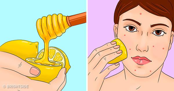 Khi bị mụn, hãy dùng một chút mật ong đổ lên nửa quả chanh rồi thoa hỗn hợp lên da. Hỗn hợp này giúp kháng khuẩn, làm sạch nhân mụn và hạn chế sẹo.