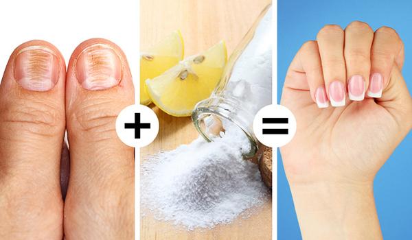 Dùng baking soda trộn với nước cốt chanh, ngâm móng tay vào hỗn hợp giúp làm trắng móng ố vàng hiệu quả.
