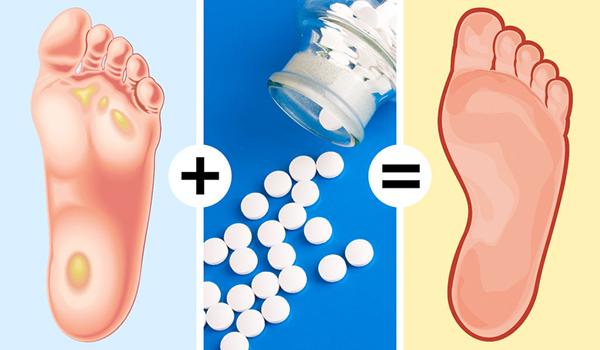 Nghiền nhuyễn 4 viên aspirin, trộn thêm chút nước chanh rồi hoà vào chậu nước ấm, ngâm chân khoảng 20 phút rồi chà nhẹ để lấy đi vết chai chân.