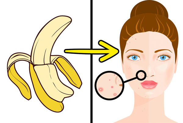 Trị mụn Vỏ chuối rất giàu vitamin C, E, kali, sắt và kẽm, các hợp chất có khả năng làm dịu làn da bị viêm, giảm mụn đỏ,