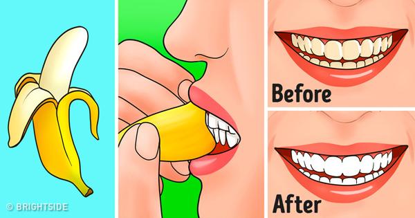 Làm trắng răng Vỏ chuối chứa hàm lượng lớn potasssium, hợp chất có tác dụng làm sạch mảng bám, tẩy trắng răng bị ố vàng do dùng trà, cafe. Dùng mặt trong của vỏ chuối chà nhẹ lên răng 2 - 3 lần mỗi tuần.