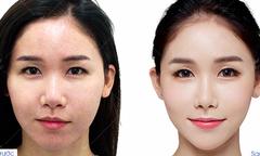 Ưu đãi 50% dịch vụ cấy mỡ trẻ hóa công nghệ Hàn Quốc