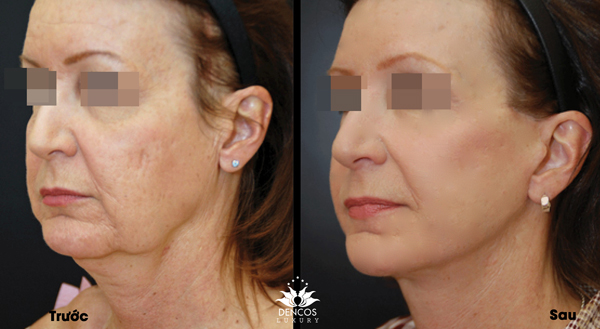 Sau một liệu trình,làn da được tái sinh mịn màng, giảm nhăn nheo, chảy xệ và nhanh chóng lấy lại vẻ trẻ trung.