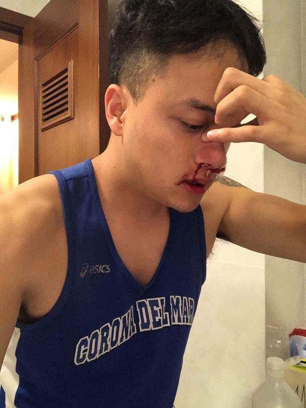 Máu cam tuôn thành dòng lúc rạng sáng 6/6 khiến Cao Thái Sơn phải đi cấp cứu.