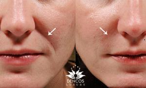 Loại bỏ rãnh nhăn vùng mũi má khiến khuôn mặt già nua