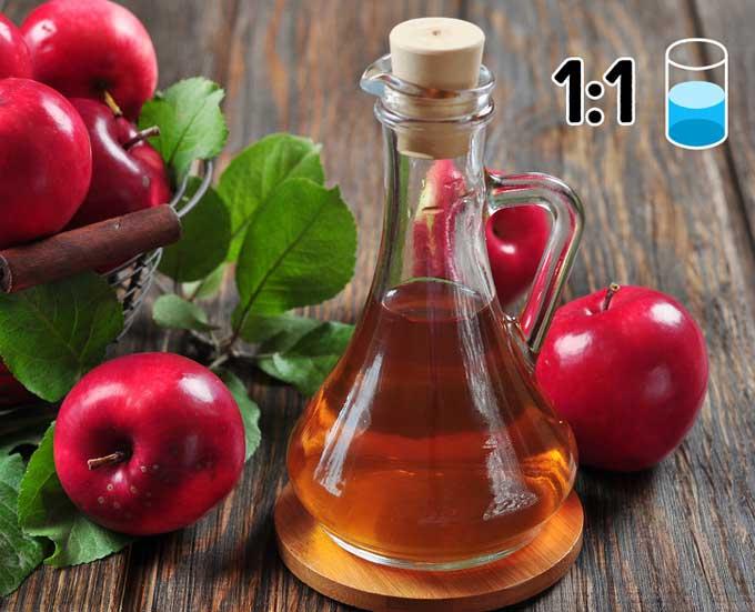 7 mẹo trị gàu với nguyên liệu thiên nhiên ít tốn kém - 1