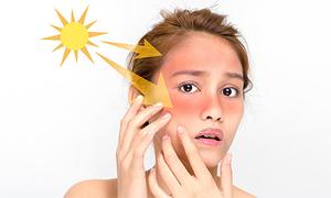 6 lý do thôi thúc bạn dành một phút mỗi sáng bôi kem chống nắng