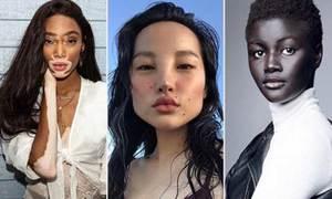 3 cô gái làm thay đổi chuẩn mực về vẻ đẹp