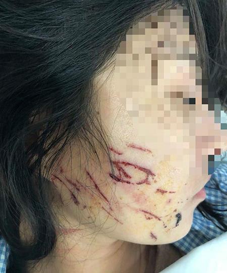Khuôn mặt nạn nhân bị nhiều vết trầy xước sau vụ hành hung.