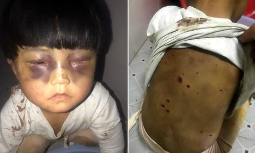 Bé gái Trung Quốc bị bố đánh bầm mắt, xích trong toilet