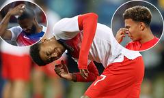 Các sao tuyển Anh vừa đấu Tunisia vừa lo đối phó với côn trùng