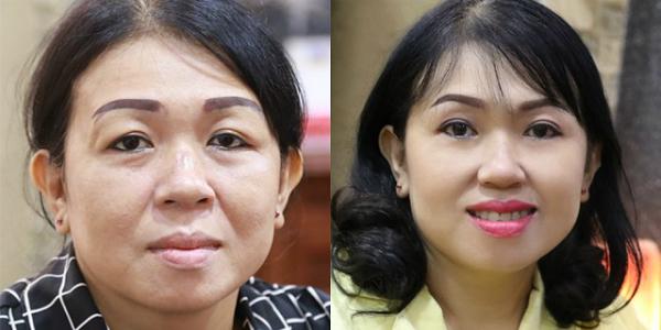 Chị Nguyễn Thị Hòa (Quận 3, TP.HCM) cảm thấy tươi trẻ, tự tin sau phẫu thuật trẻ hóa vùng mắt