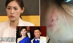 Vợ sao 'Thiên hạ vô tặc' cáo buộc chồng ngoại tình, bạo hành