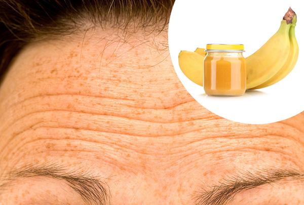 Trị nếp nhăn Chuối là phương thuốc trị nếp nhăn rất hiệu quả. Bạn chỉ cần nghiền nhuyễn một quả chuối, trộn với một thìa cà phê mật ong, thoa hỗn hợp này lên da đã được làm sạch, để khoảng 20 phút rồi rửa lại. Áp dụng phương pháp này hai lần mỗi tuần để thấy được kết quả rõ rệt.